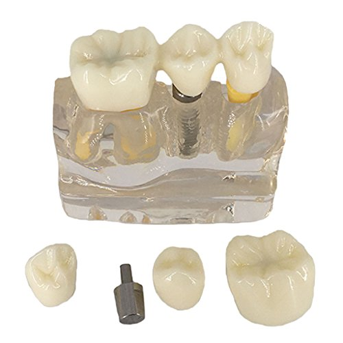 Nice Baosity 1 Set Dental Implant Analysis Crown Bridge Demonstration Dental Teeth Model for Doctor Communication 100×80×90mm/4×3×3.5 inch