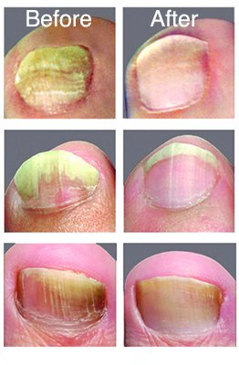 Amazon Com Nonyx Fungal Nail Clarifying Gel 4 Oz Health
