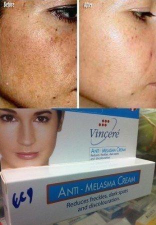 best cream for dark spots on face