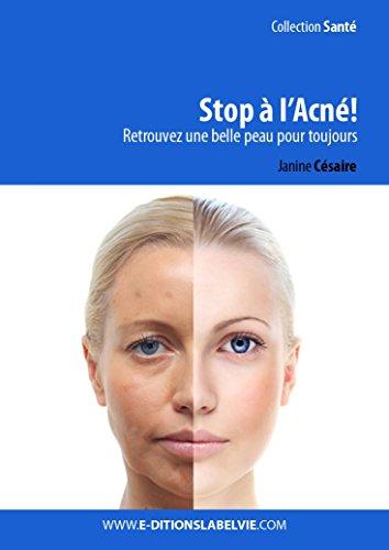 Stop à l'acné !: Retrouvez une belle peau pour toujours (French Edition)