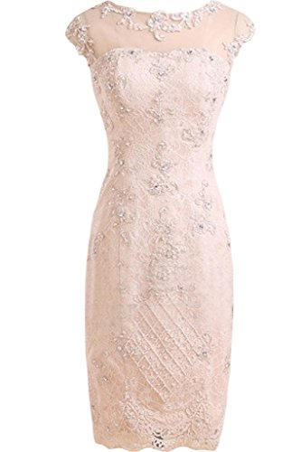Neck Beaded Lace - 4