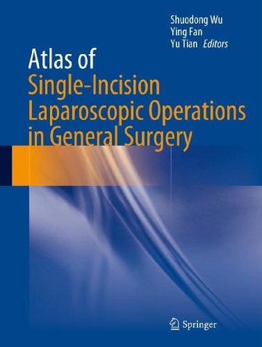 Atlas of Single-Incision Laparoscopic Operations in General - Atlas Single
