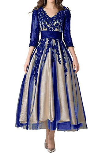 Abaowedding Womens Lace Applique Tea Length Mother Of Bride Dresses Prom Gowns Us26plus Blue And Champagne