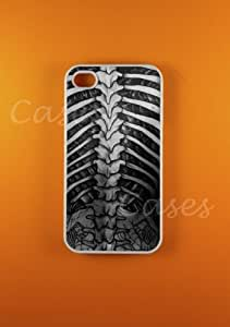 Iphone 4s Case Vintage Spine Art Iphone 4 Cases, Best Coolest Medical Cover