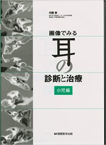 Book's Cover of 画像でみる耳の診断と治療 小児編 (日本語) 単行本 – 2011/4/1