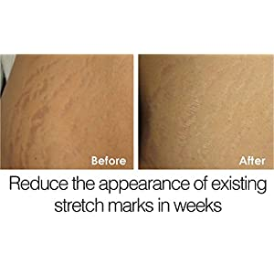 Stretch Mark & Scar Repair Cream - Reduces and diminishes the appearance of old and new stretch marks and scars for both men and woman. Enhances the skin's natural process to restore and repair the elasticity and collagen of the skin.