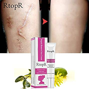 Buy Shoppy Shop Rtopr Acne Scar Removal Cream Stretch Marks