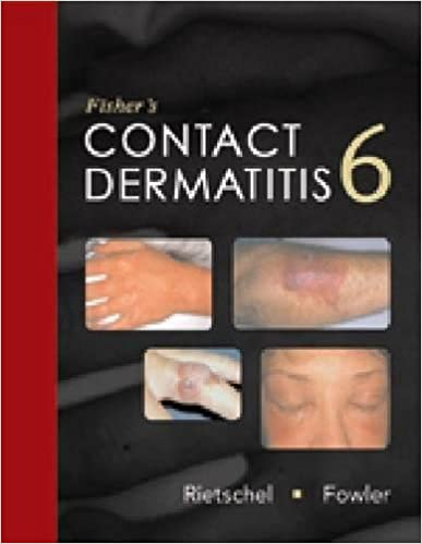 Fisher's Contact Dermatitis por Robert Rietschel epub