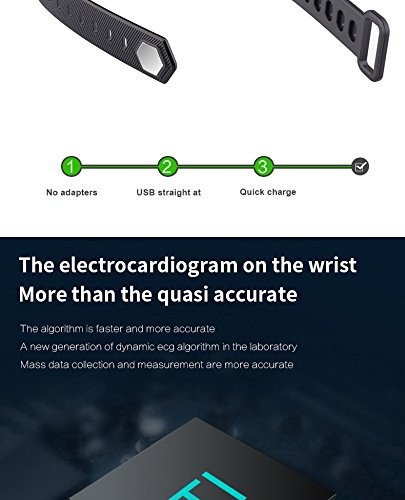 Amazon.com: Stingna G20 ECG+PPG Monitoring Smart Bracelet ...