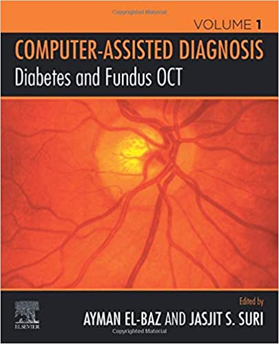 Diabetes and Fundus OCT (Computer-Assisted Diagnosis Volume 1)