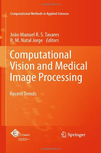 [PDF] Computational Vision and Medical Image Processing: Recent Trends Free Download | Publisher : Springer | Category : Computers & Internet | ISBN 10 : 9400700105 | ISBN 13 : 9789400700109