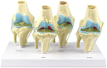 LXX Human Knee Joint Anatomical Model Four Stage Pathological Knee Joint Model Bone Joint Erosion Demonstration Medical Science Skeleton Teaching Aid