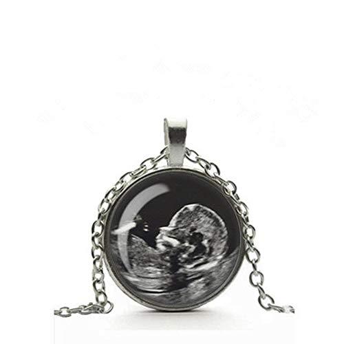 Dandelion Custom Ultrasound Necklace, Baby Scan Photo, Glass Cameo Pendant, Baby Sonogram Jewelry, Personalized Custom Photo