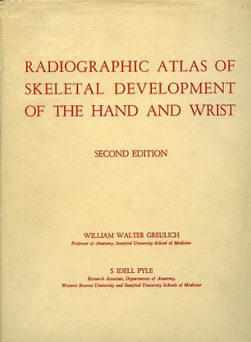 Fractures Wrist (Radiographic Atlas of Skeletal Development of the Hand and Wrist)