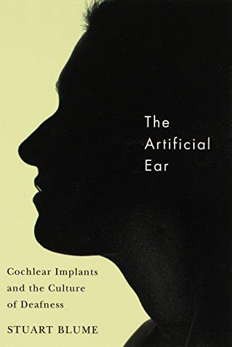 Cochlear Ear Implant - 1