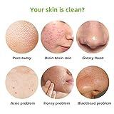Cutelove Tea Tree Soap Bar, Oil-control Anti-acne