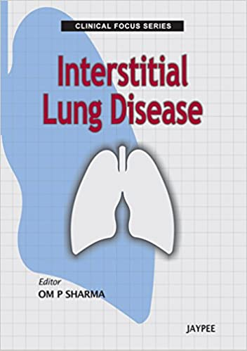 Clinical Focus Series: Interstitial Lung Disease - Kindle