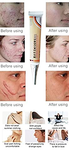 Face Pigmentation Cream Anti Acne Spots Scar Removal Repair Oily Skin Care Stretch Marks Remover Body Chinese