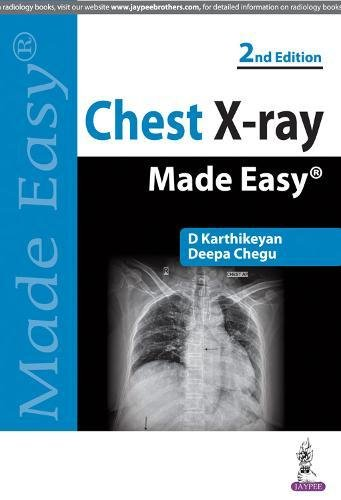 Chest X-ray Made Easy 3rd Edition Pdf