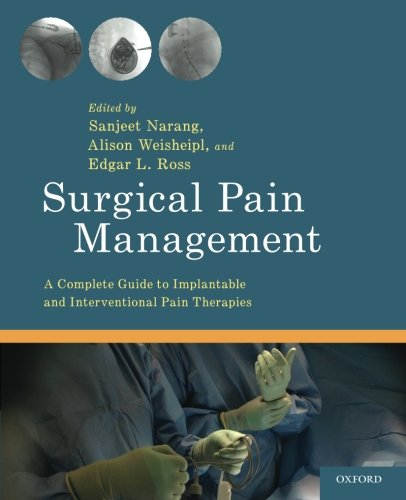 Surgical Pain Management: A Complete Guide to Implantable and Interventional Pain Therapies by Oxford University Press