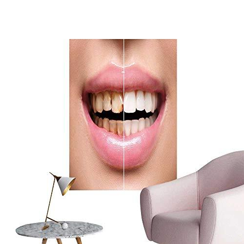 SeptSonne Modern Painting Woman Teeth Before After Dental Treatment Teeth whiten smil Woman Dental Health Home Decoration,24