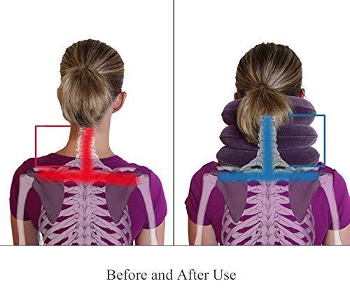 aufblasbar und verstellbar sofortige Schmerzlinderung bei chronischen Nacken- und Schulterschmerzen Violett Nacken-Zugger/ät