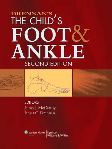 Download Drennan's The Child's Foot and Ankle Pdf
