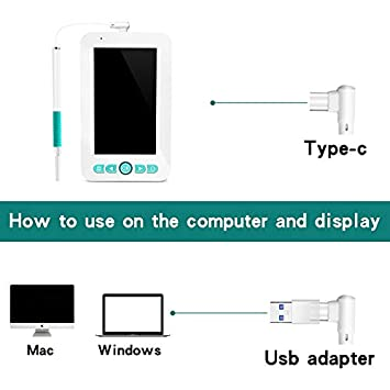 5.5mm Herramienta para Quitar Cera de o/ído inspecci/ón de boroscopio HD 1080P LittleMokey C/ámara WiFi endoscopio de Limpieza de o/ído USB con Pantalla