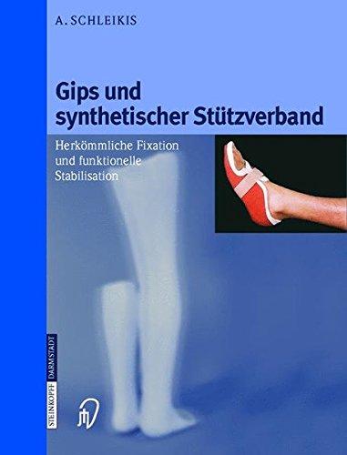 Gips und synthetischer Stützverband. Herkömmliche Fixation und funktionelle Stabilisation