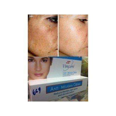 Best Anti-Melasma Reduces Age Spots, Sun Spots, Pigmentation, Freckles 15 G.
