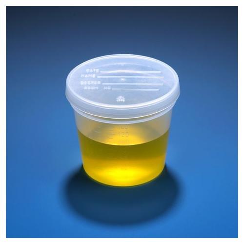 Globe Scientific 5917 Specimen Container, 5 oz.PP, Sep Snap Cap