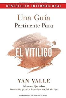 Una Guía Pertinente Para El Vitiligo