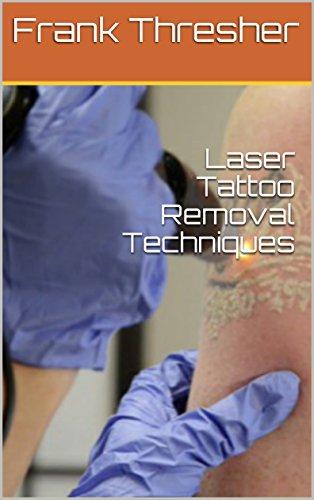 Amazon.com: Laser Tattoo Removal Techniques eBook: Frank Thresher ...