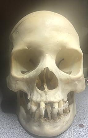 Real Human Skull Amazon Industrial Scientific