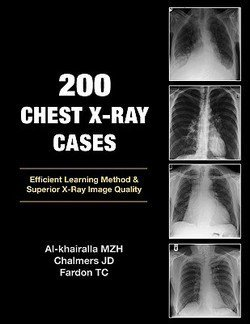 Mudher Al-Khairalla: 200 Chest X-Ray Cases (Paperback); 2009 Edition