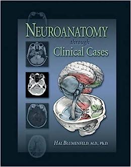 Neuroanatomy Through Clinical Cases Hal Blumenfeld 9780878930609