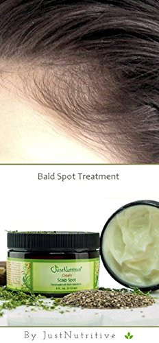 Amazon Com Bald Spot Treatment Scalp Spot Cream Hair Regrowth