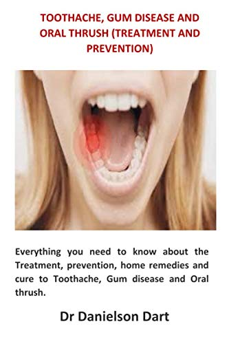 Toothache, Gum disease and Oral Thrush (Treatment and Prevention): Everything you need to know about the Treatment, prevention, home remedies and cure to Toothache, Gum disease and Oral thrush.