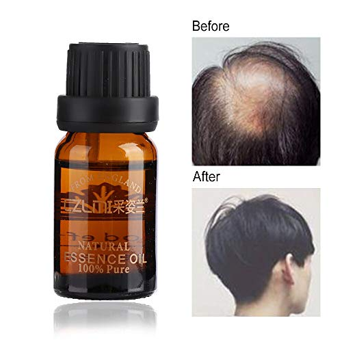 1 piece 1 Bottle Men Women Fast Growth Herbal Herbs Hair Essence Oil Natural Hair Loss Treatment Effective Hair Care Health & Beauty