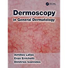 Dermoscopy in General Dermatology
