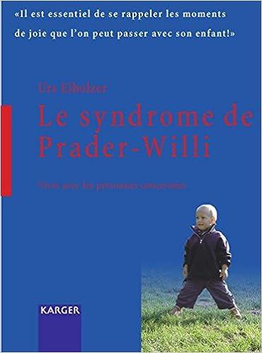 syndrome Prader Willi