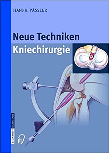 Neue Techniken Kniechirurgie (German Edition)