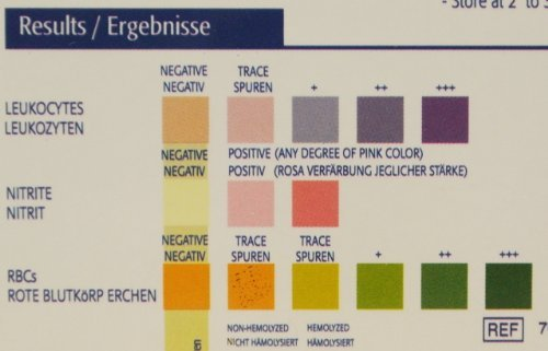 Urine Infection Colour Chart Image Gallery  Hcpr