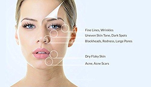 Vasanti Cosmetics Brighten Up! Enzymatic Face Rejuvenator Exfoliating Face Wash by VASANTI - Get Healthy Glowing Skin - Original Size (120g) by Vasanti Cosmetics (Image #7)