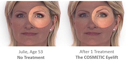 DermaWand Complete TV Kit - ANTI-AGING SYSTEM by Dermawand (Image #8)