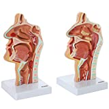 Axis Scientific Human Larynx and Pharynx Disorders