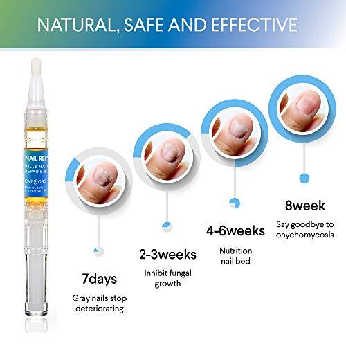 Fungus Stop Nail Repair Pen Toenail Fungus Treatment Fungus Nail Care on Toenails  Fingernails