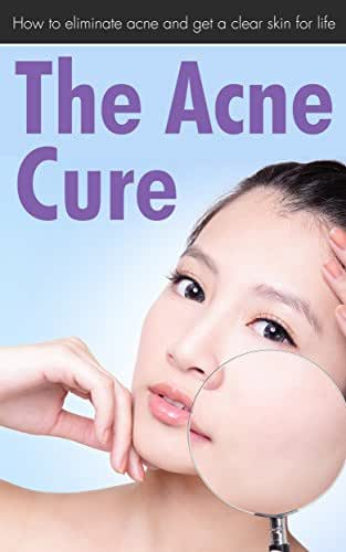 The Acne Cure: How To Eliminate Acne And Get A Clear Skin For Life (Acne cure, Overcome Acne, Clear Skin, Acne care)