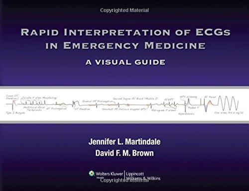 Rapid Interpretation of ECGs in Emergency Medicine: A Visual Guide