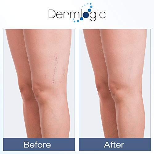 Vitamin K Cream- Moisturizing Bruise Healing Formula. Dark Spot Corrector for Bruising, Spider Veins & Broken…